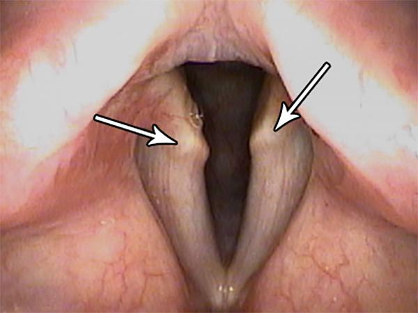Normal Projections of Cartilage Appear to Stand Out as Abnormal Masses in These Thinned Vocal Folds