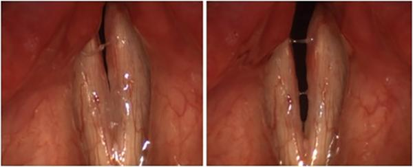 This shows the full range of motion of the vocal folds in a patient with bilateral vocal fold paralysis after thyroid surgery. The vocal folds are closed for voicing at left, and open for breathing at right.