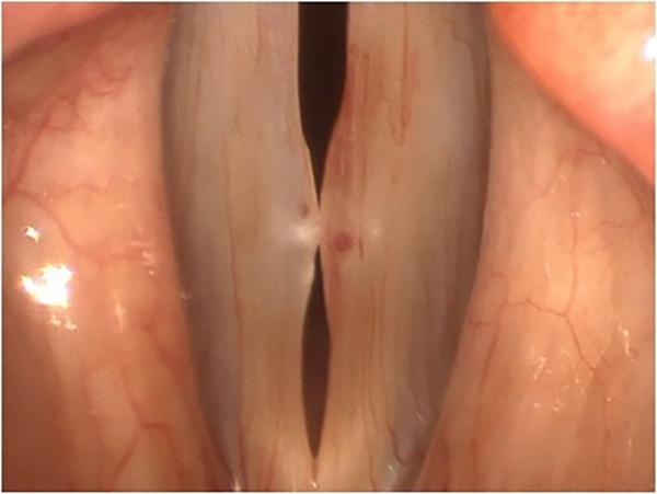 This image shows a resolving vocal fold hemorrhage on the left vocal fold (right in the picture), visible as a darker blush of resorbing blood, in a patient with bilateral pseudocysts. A varix (the larger red dot), or dilated blood vessel, is visible in t