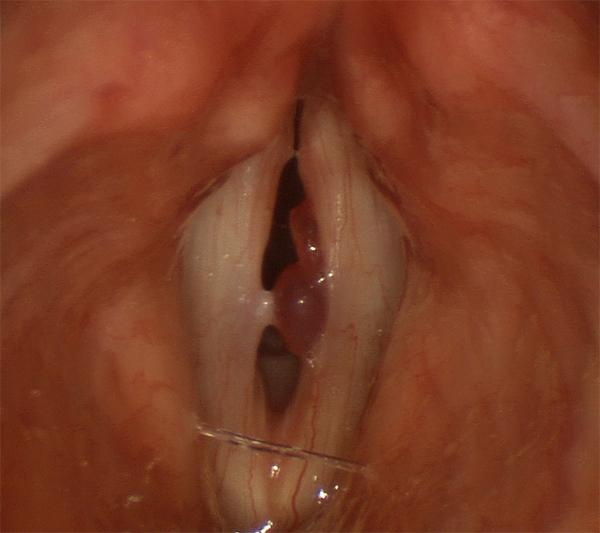This polyp has two lobes and interferes with vocal fold closure and vibration during voicing.