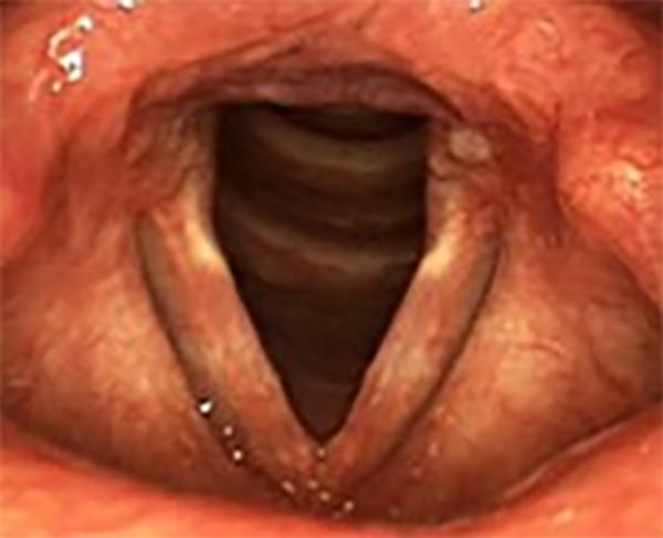 A milder case of reflux with some swelling of the tissue at the back of the larynx and reddening of the vocal folds