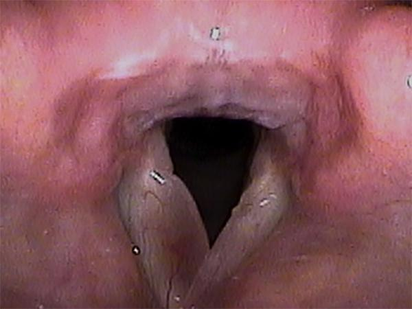 Reinke's edema involves the vocal fold on the left of the image, making it appear very swollen.