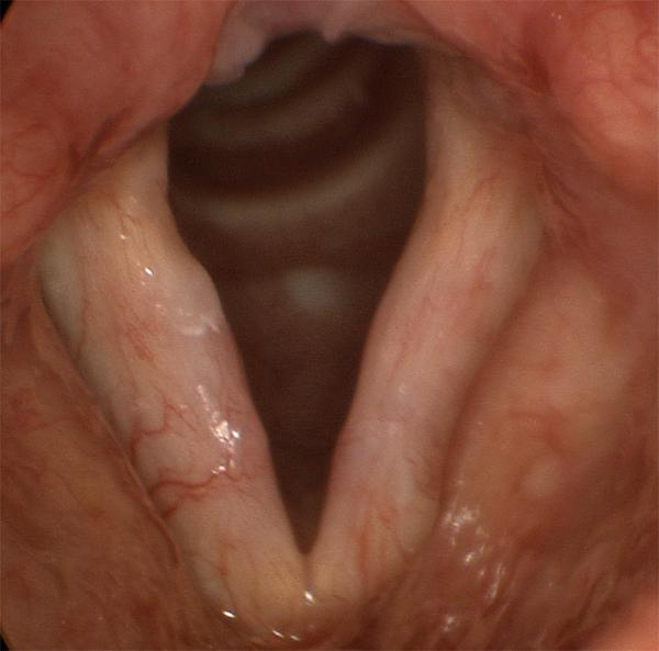 Scar is very difficult to show in still images. The bloodshot, unusually white vocal folds shown here are typical for diffuse scar, in this case after sloppy surgery for a pair of vocal fold polyps.