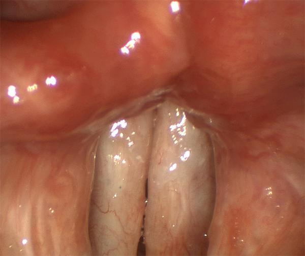 This patient has scar of both vocal folds after more than a dozen surgeries for papilloma.