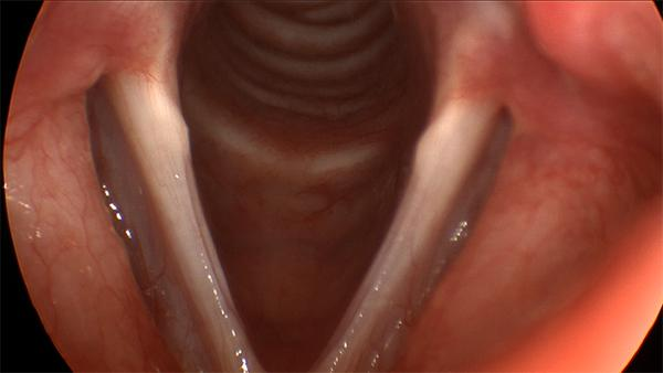 This is the typical appearance of sulcus vergeture. Grooves along the edge of both vocal folds which gives the appearance of tissue being scooped out of the vocal fold.