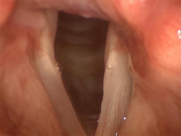 The vocal fold on the right of the image is paralyzed after a lung operation. This is the typical appearance of a paralyzed vocal fold during quiet breathing.