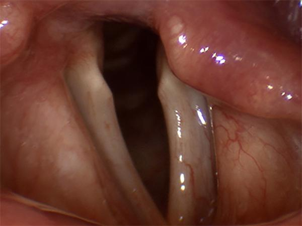 In this patient with longstanding vocal fold paralysis, the paralyzed vocal fold has lost muscle mass and has become thin and atrophic.